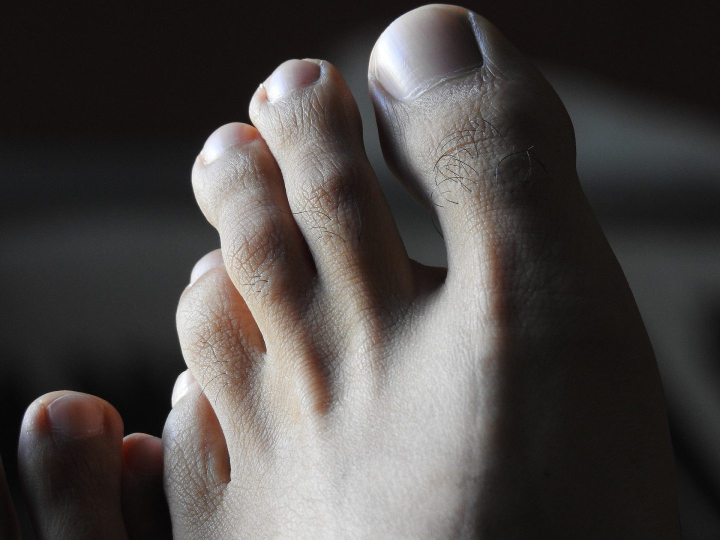 worst types of people when flying bare feet